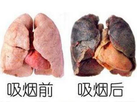 戒烟后肺部大约需要多长时间才能恢复正常